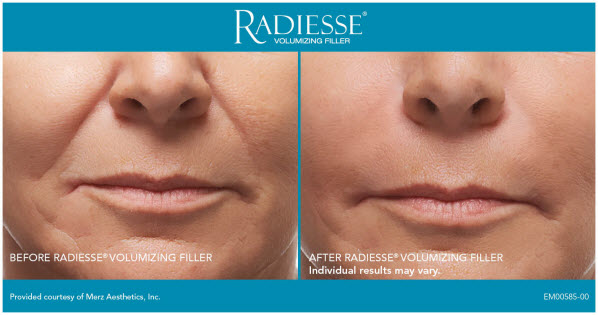 Lift and Tighten Your Face With a Special Facial Filler Offer