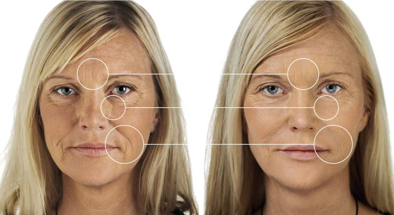 Remove My Wrinkles & Lift My Sagging Skin – No Surgery!