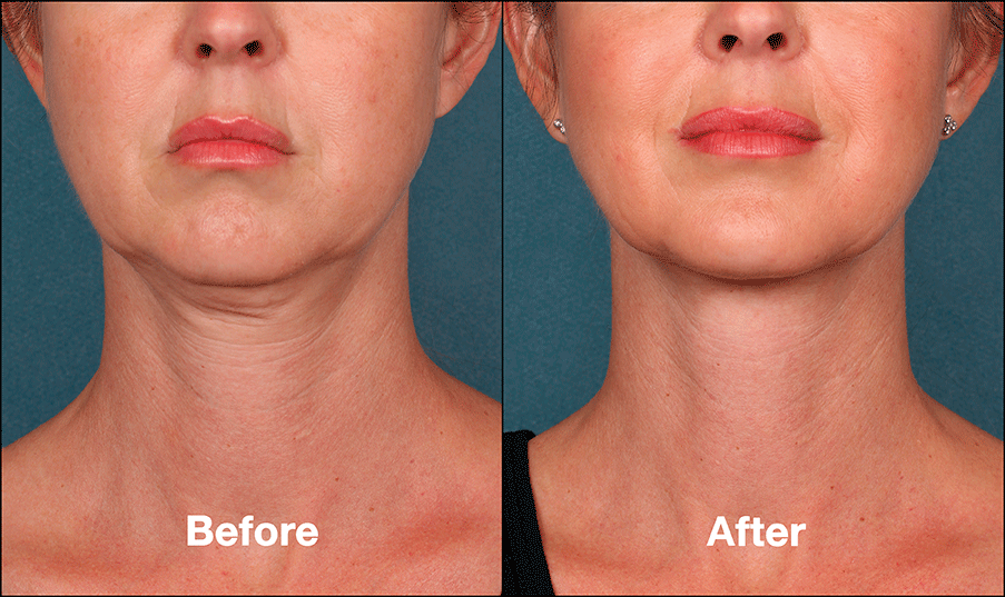 KYBELLA – Permanent Fat Removal From Neck and Chin Areas